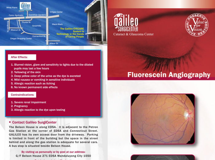 Fluorescein Angiography (FA)