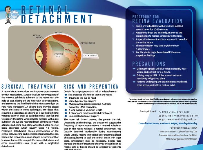 Retinal Detachment