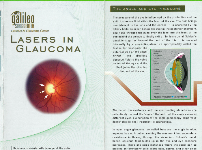 Lasers in Glaucoma